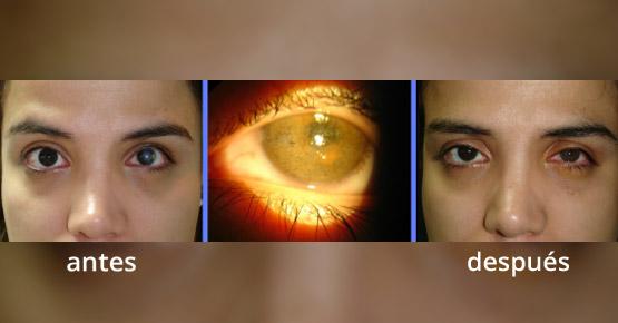 Soluciones Estéticas para Ojos Ciegos Inestéticos